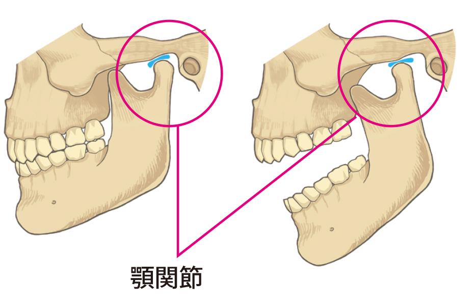 顎関節症 一般歯科 | タスクデンタルクリニック