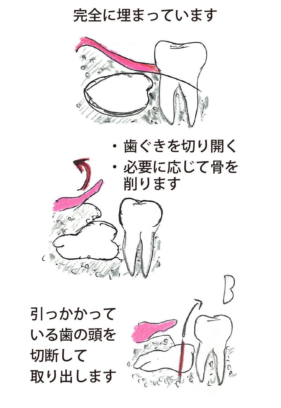 穴 食べかす 抜歯
